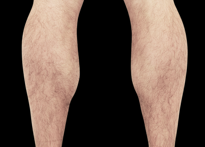 Emsculpt_PIC_083-After-calves-male-Reminder-Saluja-MD-4TX_825x592
