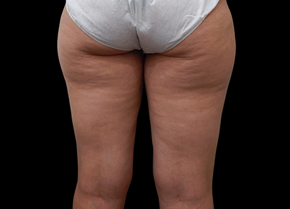 BTL_Exilis_Elite_X-Wave_PIC_001-Before-buttocks-female-Simal-Soin_412x296