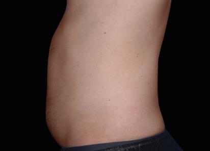 Emsculpt_neo_PIC_001-before-abdomen-male-Carolyn-Jacob-MD__412x296px