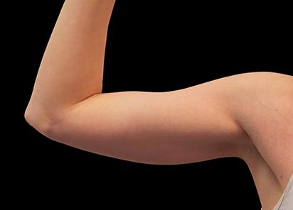 Emsculpt_PIC_078-Before-biceps-female-Reminder-Saluja-MD-md-4TX__412x296px