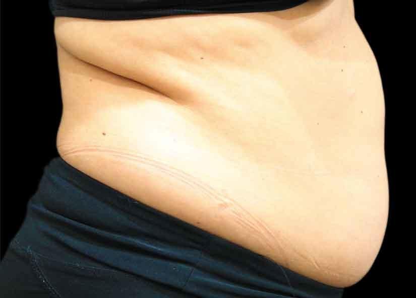 Abdomen_BTL_Vanquish_ME_PIC_026-Before-abdomen-female-Suneel-Chilukuri-MD_825x592px