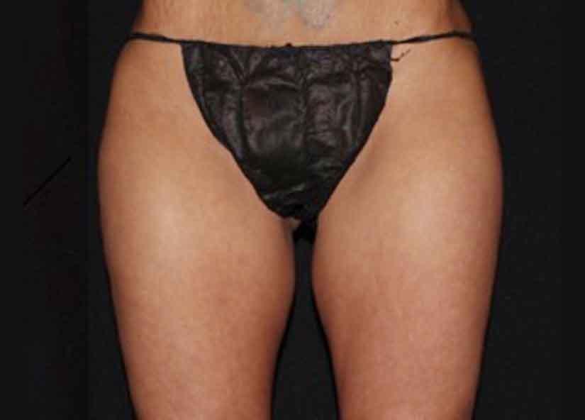Legs_BTL_Vanquish_ME_Flex_PIC_016-After-legs-female-ChrisBailey-4TX_825x592px