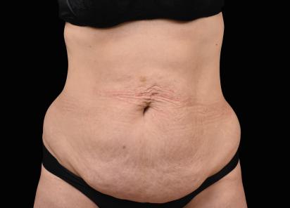 Emsculpt_neo_PIC_009-before-abdomen-female-Radina-Denkova-MD__412x296px