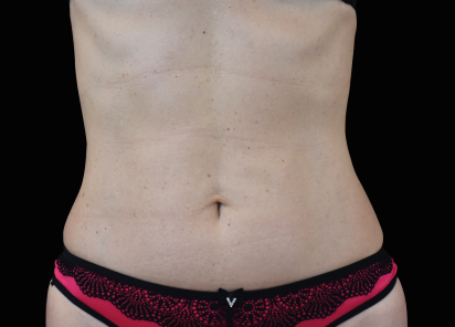 Emsculpt_neo_PIC_018-after-abdomen-female-Radina-Denkova-MD-1M__412x296px