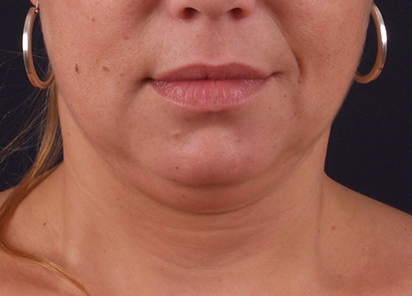 Exilis_PIC_116-Before-neck-female-Katerina-Fajkosova-MD_412x296px