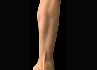 Emsculpt_PIC_087-After-calves-female-Reminder-Saluja-MD-4W-4TX_412x296px