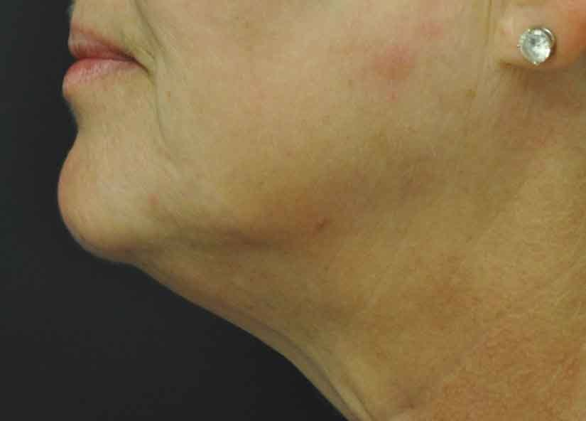 Exilis After Picture Neck Female