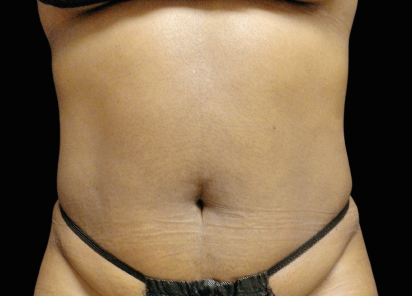 Emsculpt_neo_PIC_005-after-abdomen-female-David-Kent-MD-1M__412x296px