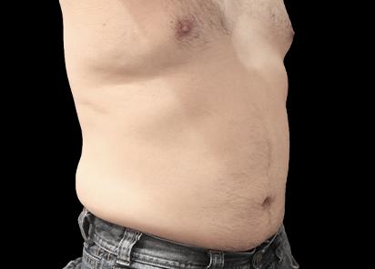 BTL_Vanquish_ME_PIC_090-After-abdomen-male-Suneel-Chilukuri-MD-4TX_412x296