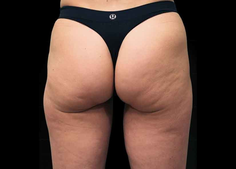 Buttocks_Before-1_825x592_Exilis