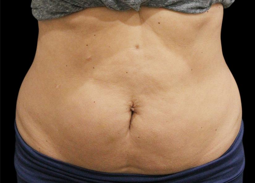 Abdomen_BTL_Vanquish_ME_PIC_024-After-abdomen-female-Suneel-Chilukuri-MD-2TX_825x592px