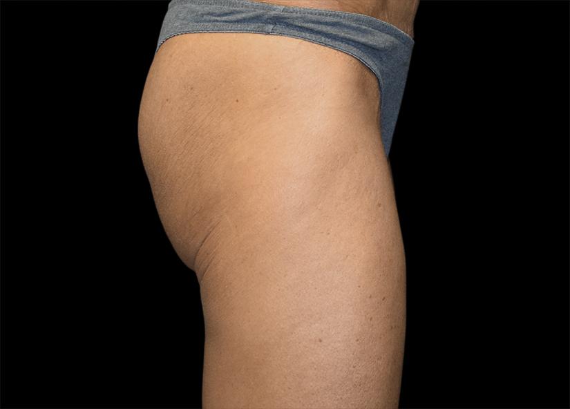 Buttocks_Emsculpt_PIC_045-before-female-Alain-michon-md-ottawa-on-canada-825x592px