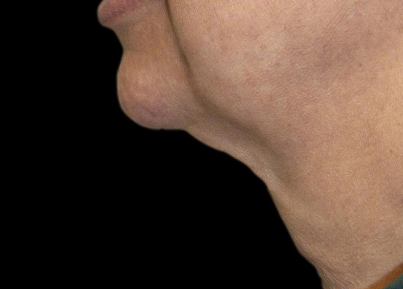 Neck_Exilis_PIC_025-Before-neck-female-Tenore_825x592px