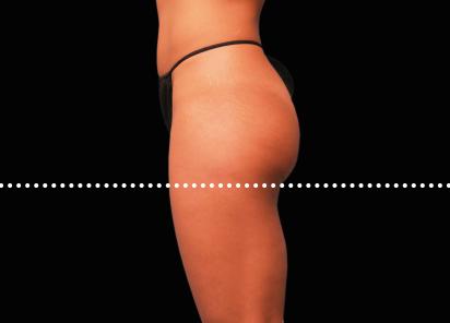 Emsculpt_PIC_042-Before-buttock-female-Brian-Kinney-MD__412x296px
