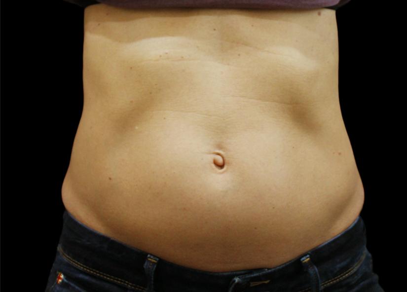 Abdomen_BTL_Vanquish_ME_PIC_021-Before-abdomen-female-Suneel-Chilukuri-MD_825x592px