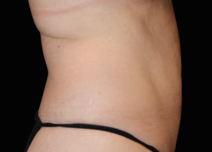 Emsculpt_neo_PIC_040-after-abdomen-female-Julene-Samuels-MD-6M__412x296px
