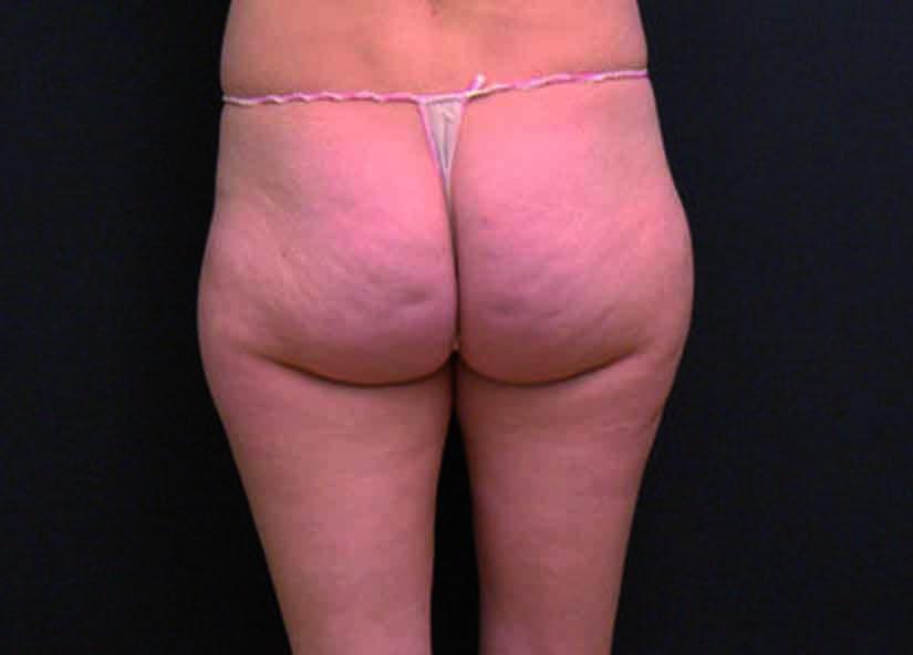 Buttocks_X-Wave_PIC_002-Before-buttocks-female-btlaesthetics_825x592px