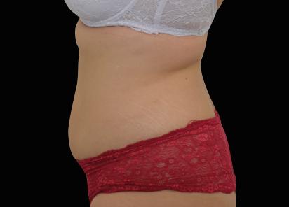 Emsculpt_neo_PIC_025-after-abdomen-female-BTL-Aesthetics-1M__412x296px