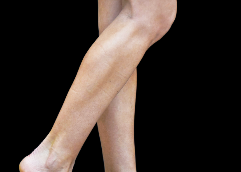 Emsculpt_PIC_084-After-calves-female-Reminder-Saluja-MD-4TX_825x592