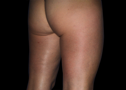 Emtone_PIC_007-Before-buttock-female-Marianno-Busso-MD_412x296