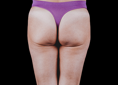 Emtone_PIC_35-After-buttock-female-Brian-Kinney-4TX_412x296