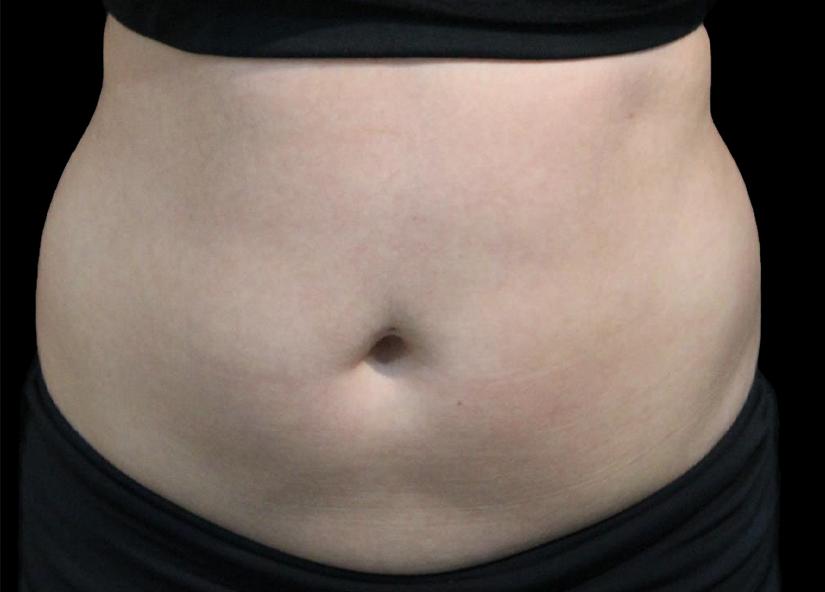 Abdomen_BTL_Vanquish_ME_PIC_013-Before-abdomen-female-Suneel-Chilukuri-MD_825x592px