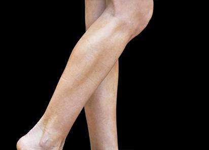 Emsculpt_PIC_084-After-calves-female-Reminder-Saluja-MD-4TX_412x296px