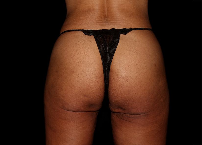 Buttocks_Emsculpt_PIC_046-after-female-Ovation-med-spa-4TX_825x592px