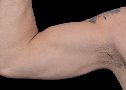 Emsculpt_PIC_098-after-biceps_male-Barry-DiBernardo-MD-4TX_412x296px