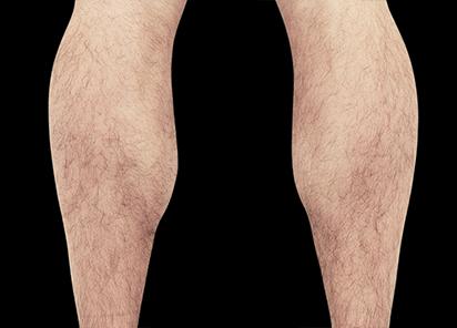 Emsculpt_PIC_083-After-calves-male-Reminder-Saluja-MD-4TX_412x296