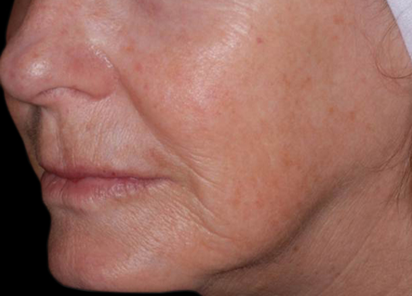 Head_Exilis_PIC_030-After-face-female-Vasily_825x592px