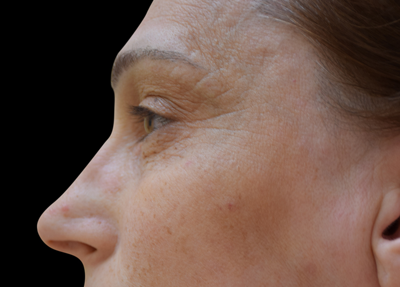 Head_BTL_Exilis_Ultra_PIC_001-Before-Forhead-Preorbital-wrinkles-BTL-Aesthetics_825x592px