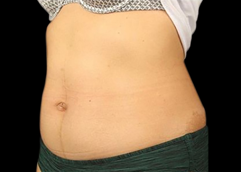 Emsculpt_PIC_090-before-abdomen-female-mark-krasny-md_825x592px