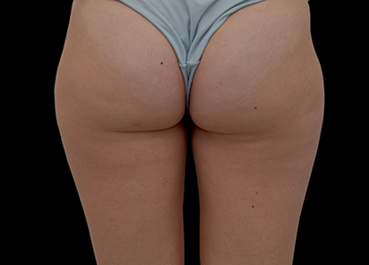 Emtone_PIC_019-After-buttock-female-Tania-Rashid-3M-4TX_412x296