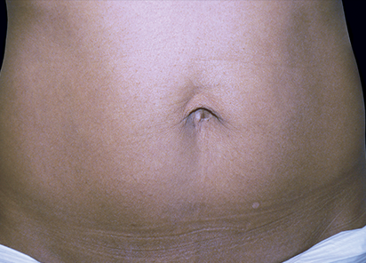 Exilis_PIC_105-After-abdomen-female-Downie-Jeannie-B.-Downie-MD-4TX_412x296px