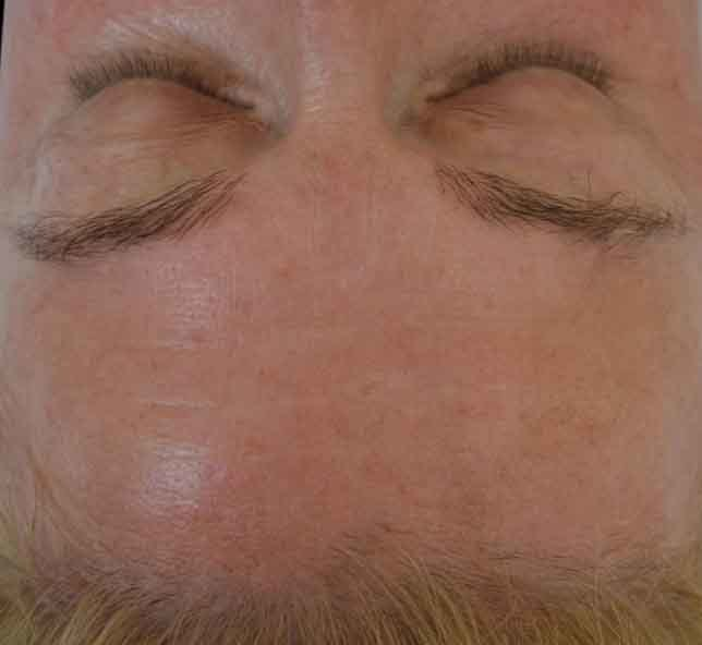 undefined_BTL_Exilis_Ultra_PIC_001-After-Forhead-female-BTL-Aesthetics-4TX