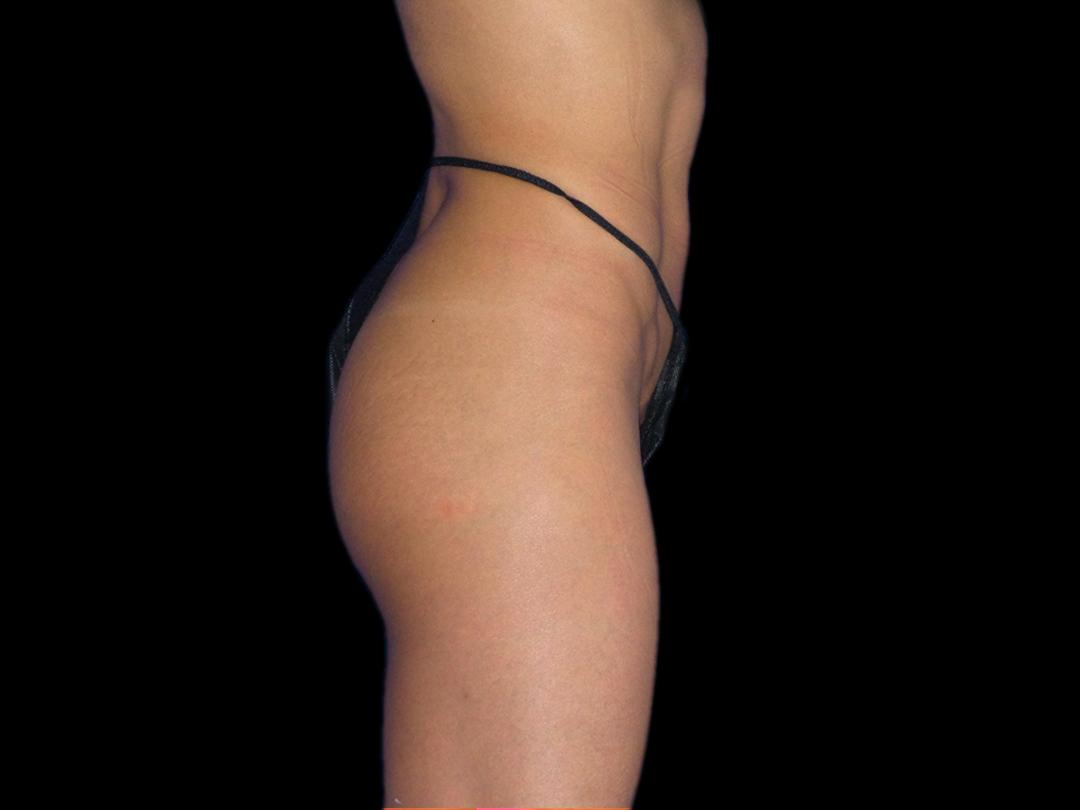 Buttocks_BTL_Emsculpt_PIC_038-before-female-JD-McCoy-MD