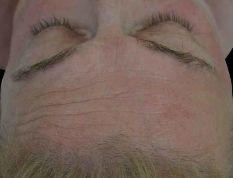 undefined_BTL_Exilis_Ultra_PIC_001-Before-Forhead-female-BTL-Aesthetics