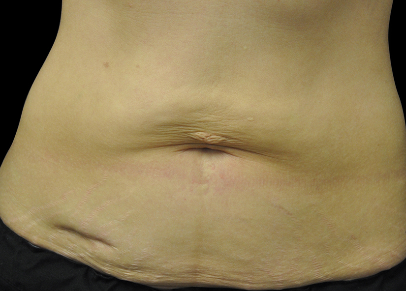 Abdomen_BTL_Exilis_Ultra_PIC_012-Before-abdomen-female-Jason-Lupton-MD_825x592px
