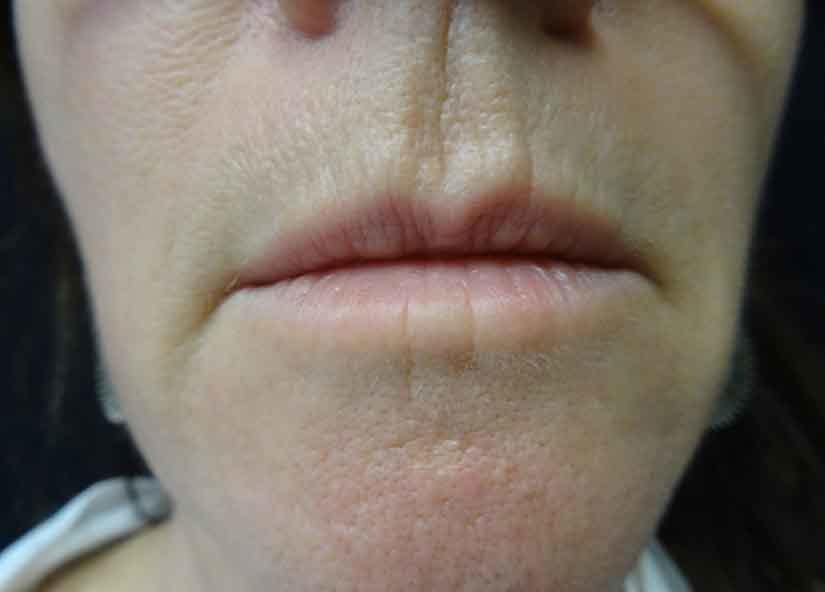 Exilis Before Picture Lips Female