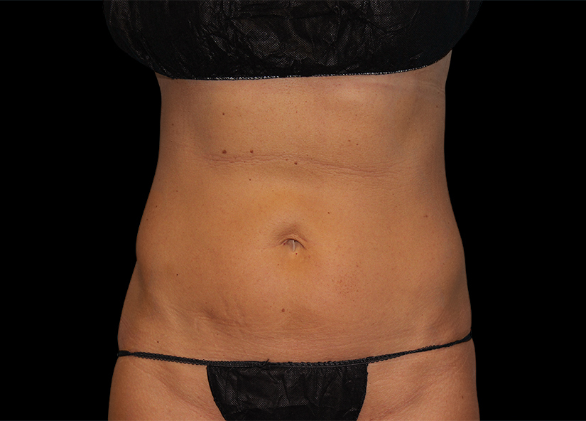 Abdomen_BTL_Vanquish_ME_PIC-301-After-abdomen-female-Amir-Moradi-MD-4TX_825x592px