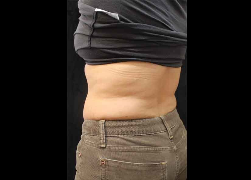 Lower_back_BTL_Cellutone_PIC_008-After-abdomen-female-Suneel-Chilukuri-MD-4TX1