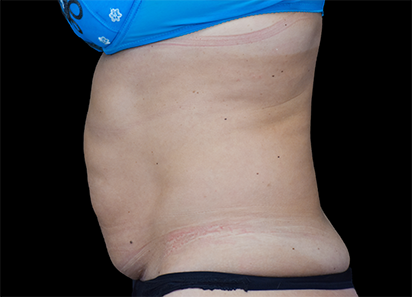 Emsculpt_PIC_022-Before-abdomen-female-Paula-Lozanova-MD_412x296px