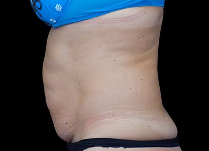 Emsculpt_PIC_022-Before-abdomen-female-Paula-Lozanova-MD_412x296px