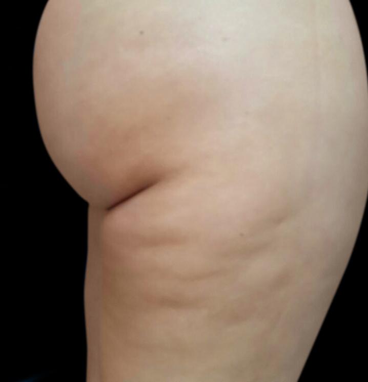 Buttocks_BTL-X-Wave_PIC_005-Before-buttocks-female
