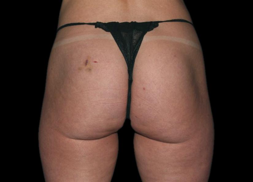 Buttocks_BTL_Emsculpt_PIC_041-after-female-Cris-Bailey-MD-4TX_2