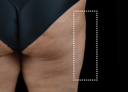Emsculpt_Neo_PIC_060-after-outer_thighs-female-BTL-Aesthetics-1M-412x296px