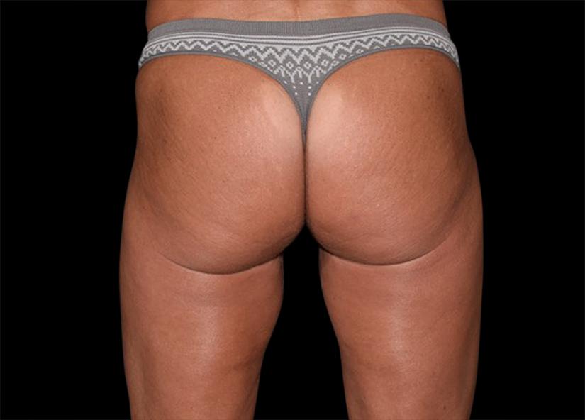 Buttocks_Emsculpt_PIC_044-after-female-Alain-michon-md-ottawa-on-canada-4TX-825x592px