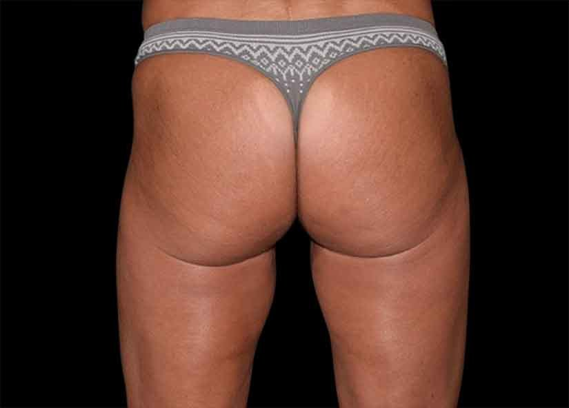 Buttocks_Emsculpt_PIC_044-after-female-Alain-michon-md-ottawa-on-canada-4TX-825x592px