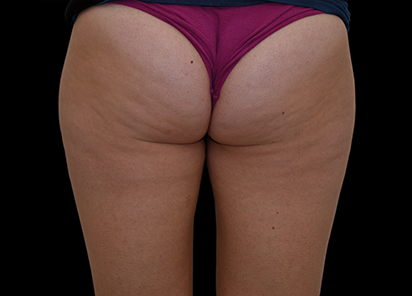 Emtone_PIC_019-Before-buttock-female-Tania-Rashid_412x296